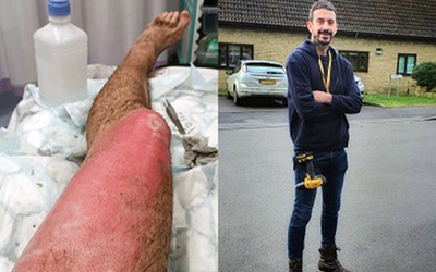 Richard's leg injury caused by a vape